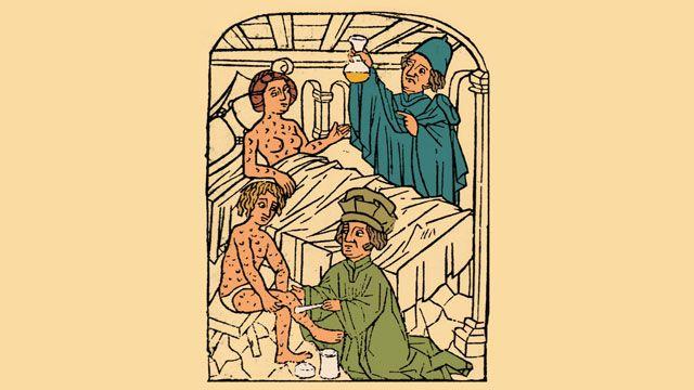 Sífilis: Entonces y Ahora - antropologia-fisica - syphilis